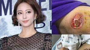"[SE★PIC] 한예슬, 의료사고 사진 2차 공개…""마음이 무너지네요"""